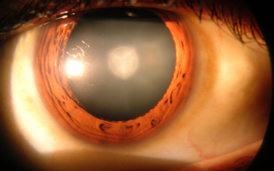 Cataracts Recovery
