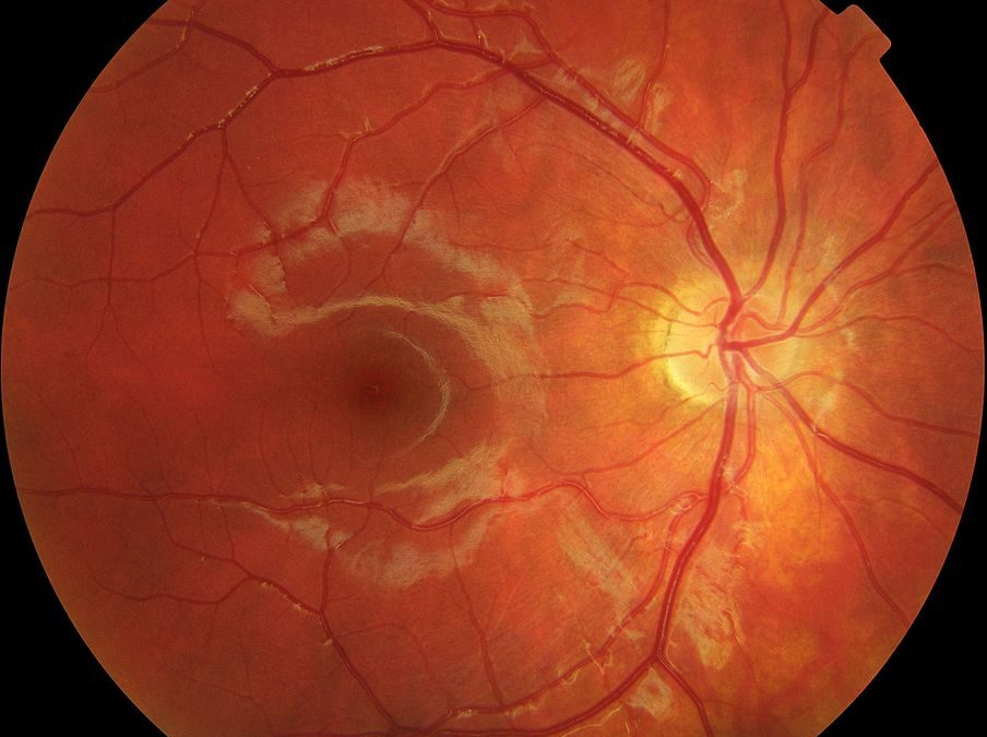 Macular Degeneration – Wet or Dry (ARMD) Recovery