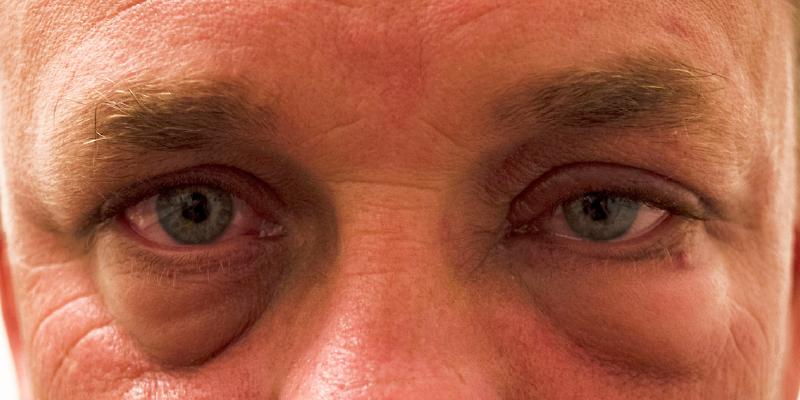 Dry Eyes/Blepharitis Recovery