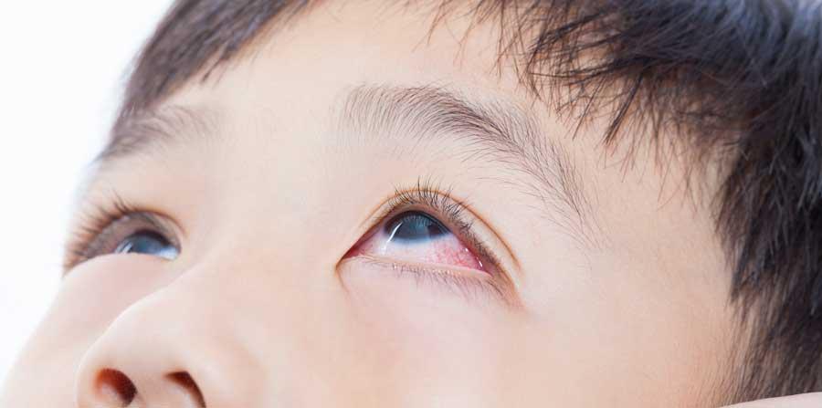Why We Get Eye Diseases