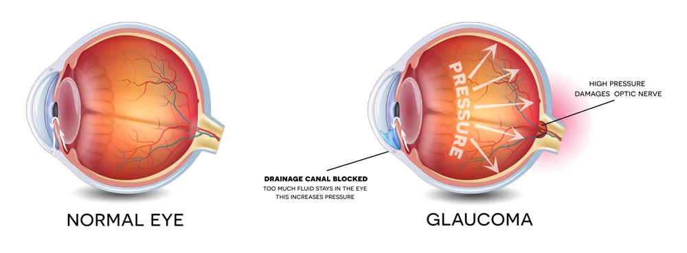 Glaucoma Recovery