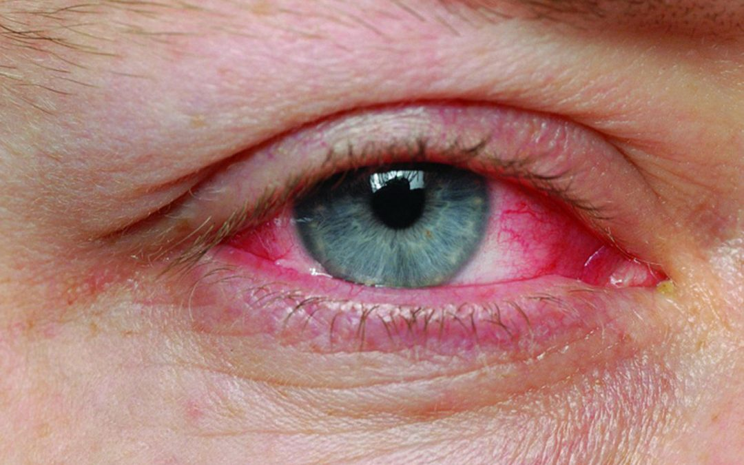Conjunctivitis Recovery