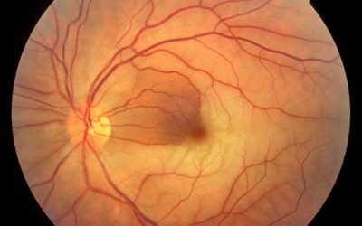 Retinal Artery and Vein Occlusion Health Plan